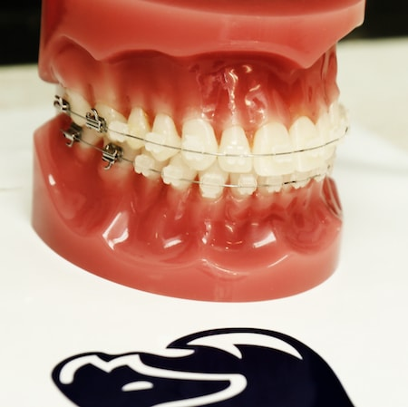 Artificial teeth with modern braces on them
