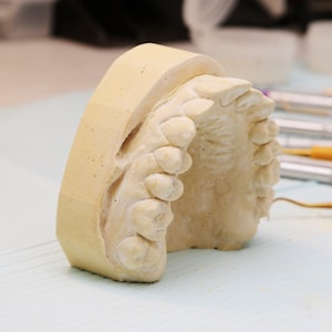 Mold for dentures that are offered as part of our restorative and cosmetic dentistry services