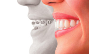 Orthodontic treatment - traditional braces vs Invisalign