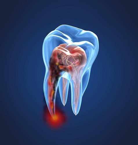 3D photo of an infected tooth in need of root canal services.